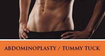 View Abdominoplasty / Tummy Tuck Procedure Photo Gallery