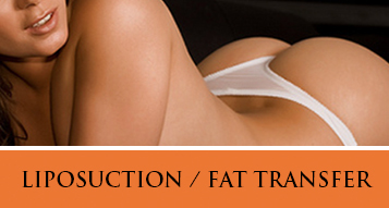 View Liposuction / Fat Transfer Procedure Photo Gallery